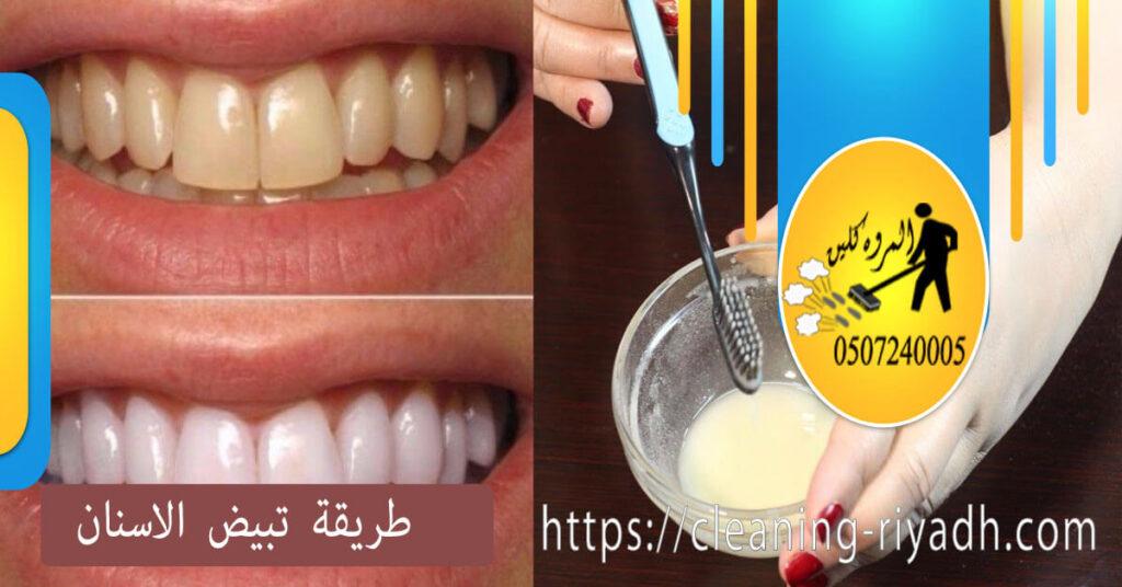 طريقة تبيض الاسنان في المنزلَ