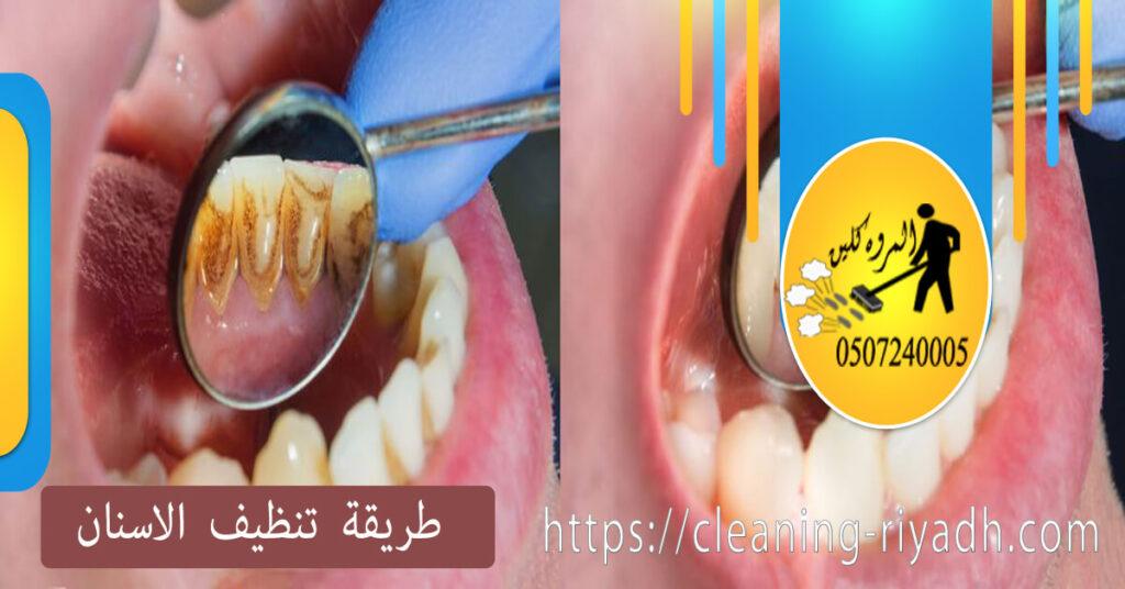 طريقة تنظيف الاسنان من الجير